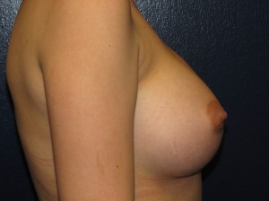 After - silicone breast implant - side view