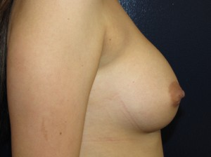 Before - saline implant - side view