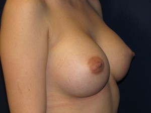 After - Very high profile and larger smooth surfaced silicone implants