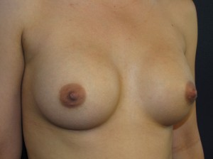 Before - moderate profile smooth surfaced saline implants - oblique view