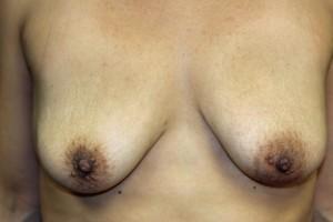 After explantation