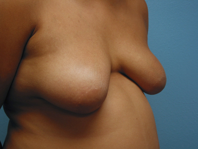 Congratulate, Men with big boobs are mistaken