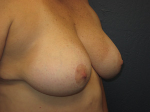 Breast Reduction - after