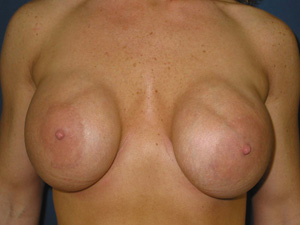 Saline implant above the muscle (submammary) Frontal view