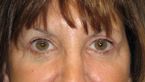 After eyelid surgery and endoscopic forehead lift
