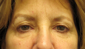 Before eyelid surgery and endoscopic forehead lift