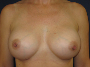 Nipple-areola heights following breast augmentation (frontal view)
