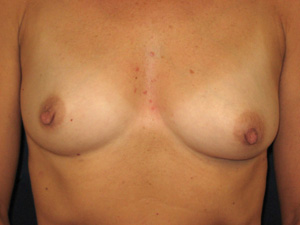 Different nipple-areola heights (frontal view)