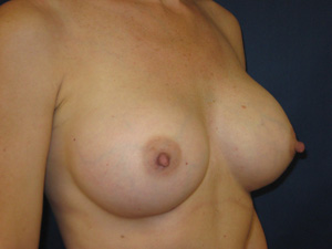 Nipple-areola following breast augmentation (oblique view)
