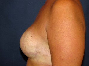 Following Breast Reconstruction - Side view