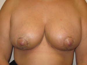 Immediately following Breast Reduction - Frontal view
