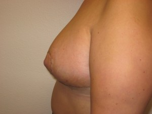 Immediately following Breast Reduction - Side view
