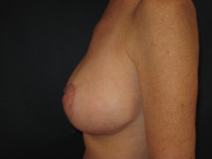 T shaped mastopexy RL post