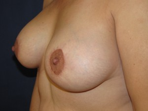 Periareolar Mastopexy. Note flatness of left breast at the areola(not my patient)