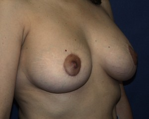 Periareolar mastopexy. Greater flattening can be seen particularly at the bottom of the breast