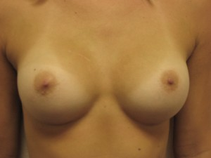 Implants behind the muscle. Note the more natural shape and smoother curves