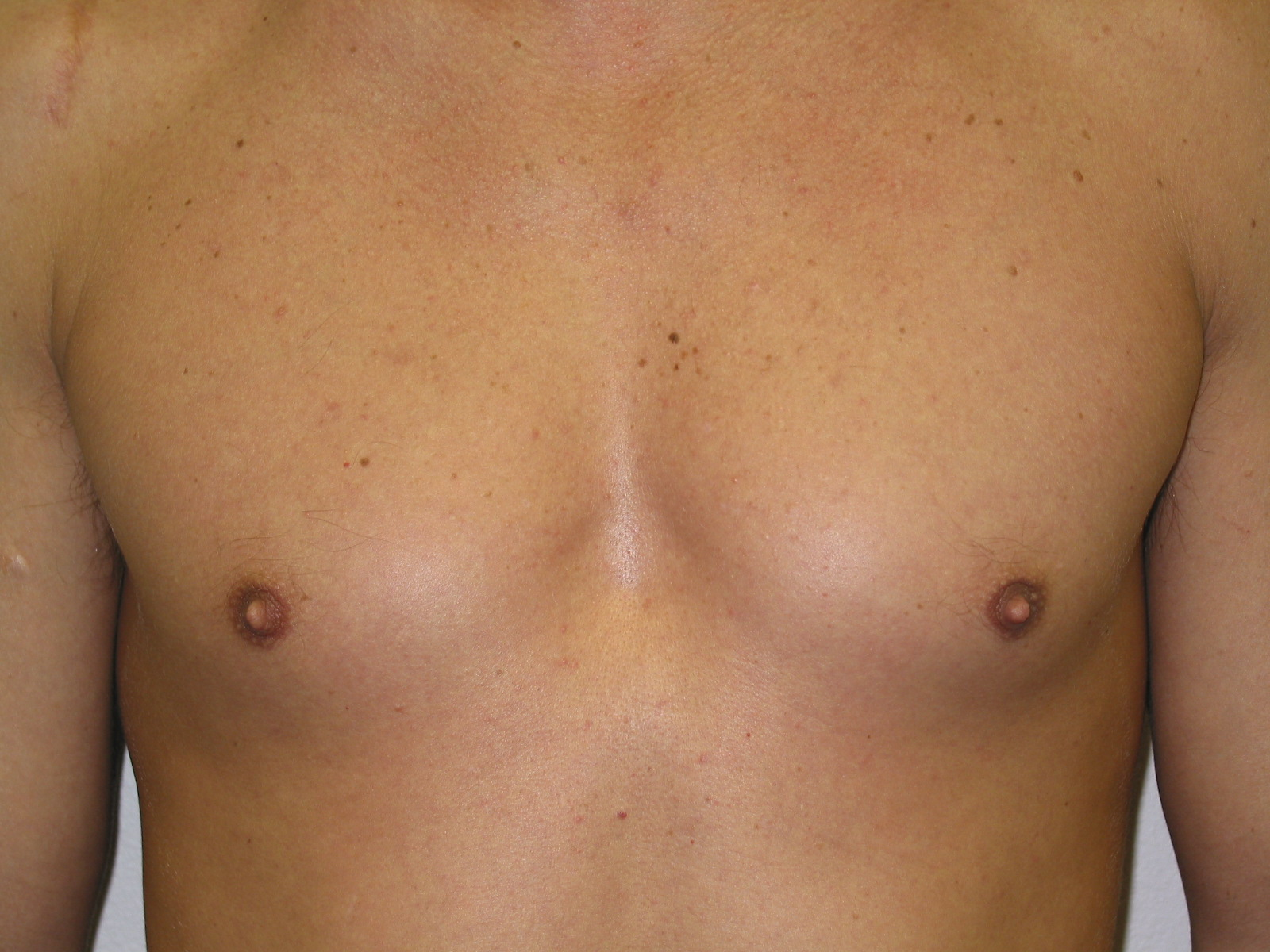Shame! enlarging mens breast safe