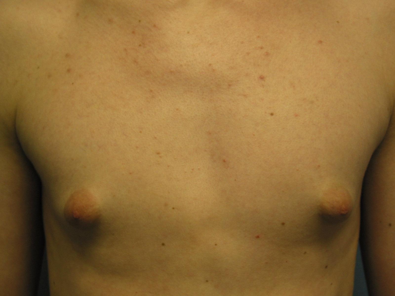 Фото отвисшие маленькие груди, Висячие сиськи - отвисшие сиськи, титьки и висячая 11 фотография