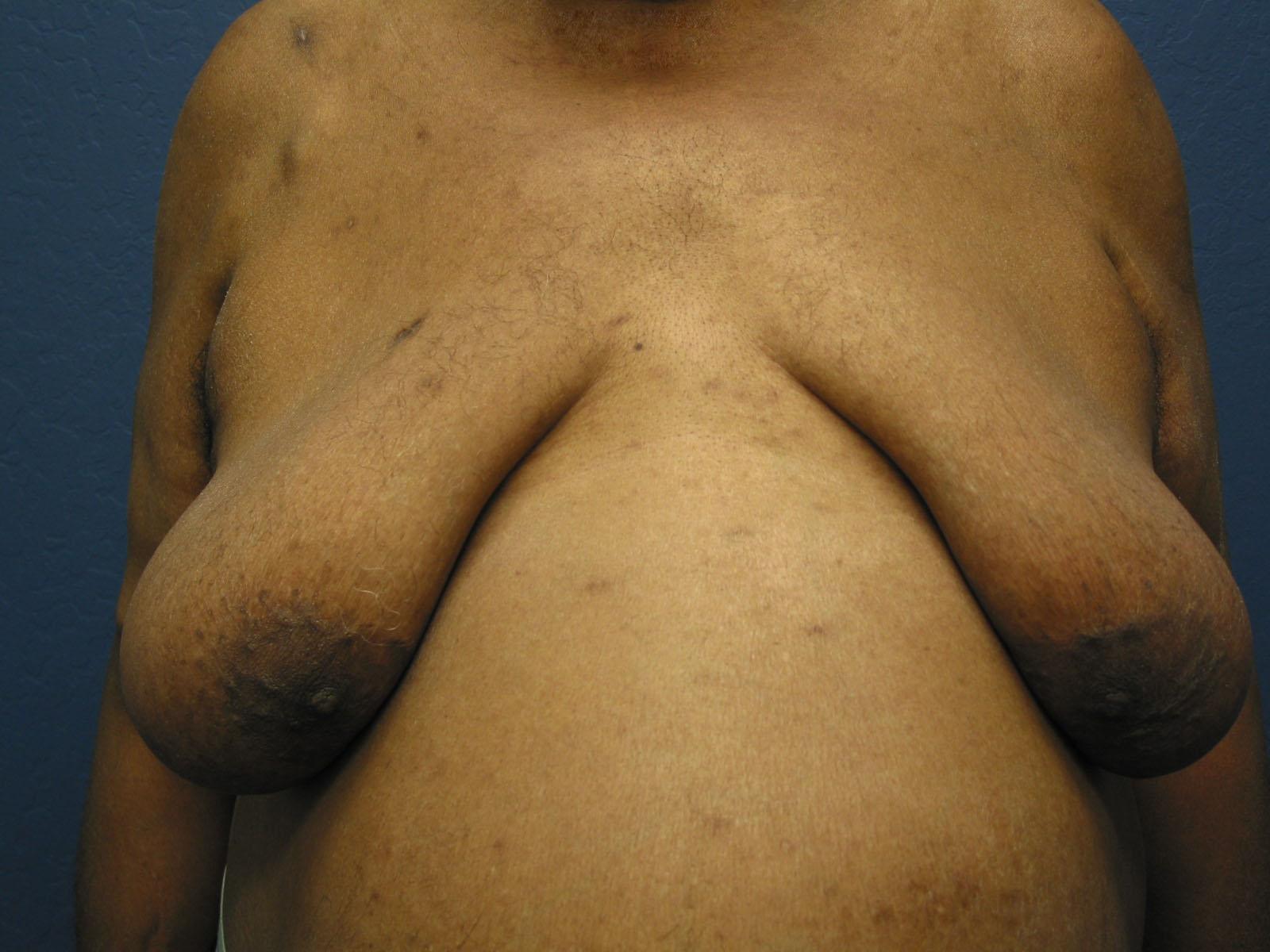 Enlarge enlarge male breasts