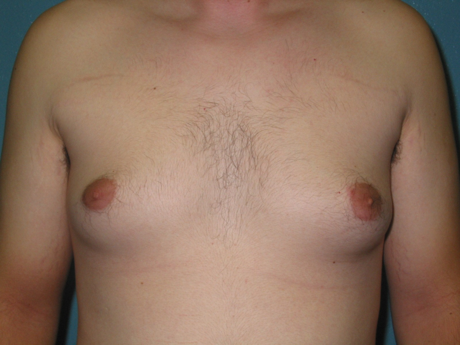 Not believe. enlarging mens breast excellent