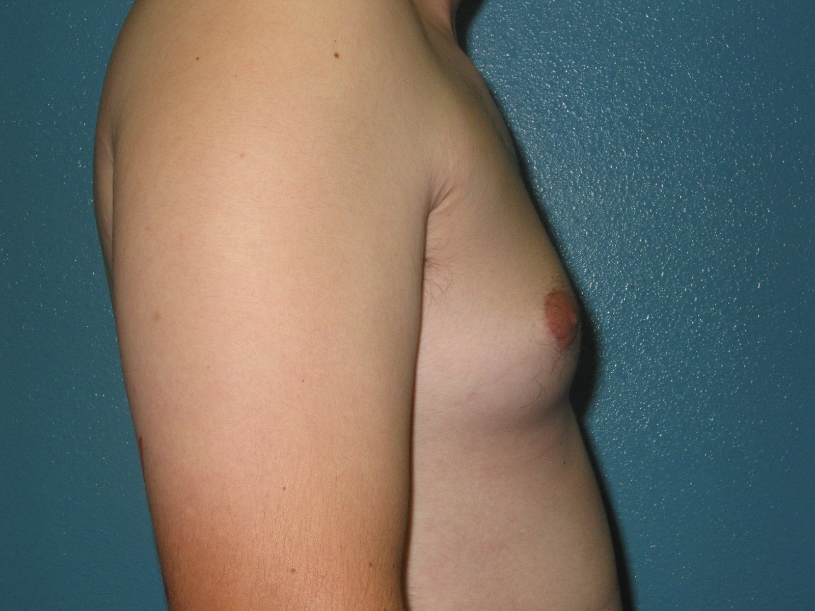 young-girl-breast-delvopment-mitos-sexuales