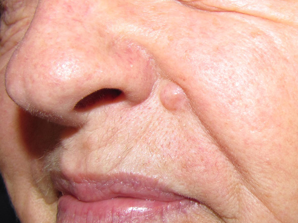 Good Facial tumors pictures for