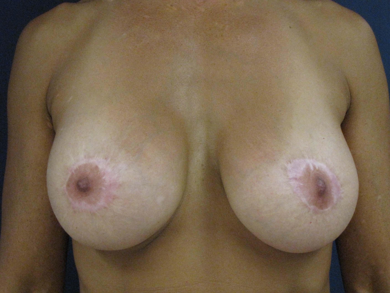 worldwide nude braches