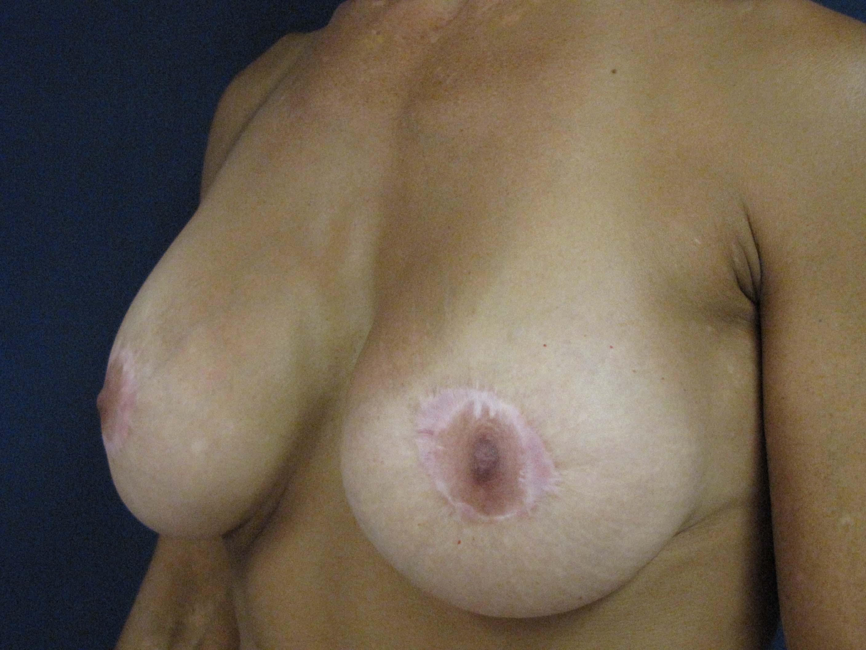 Фото ореол на груди ужасных выебали