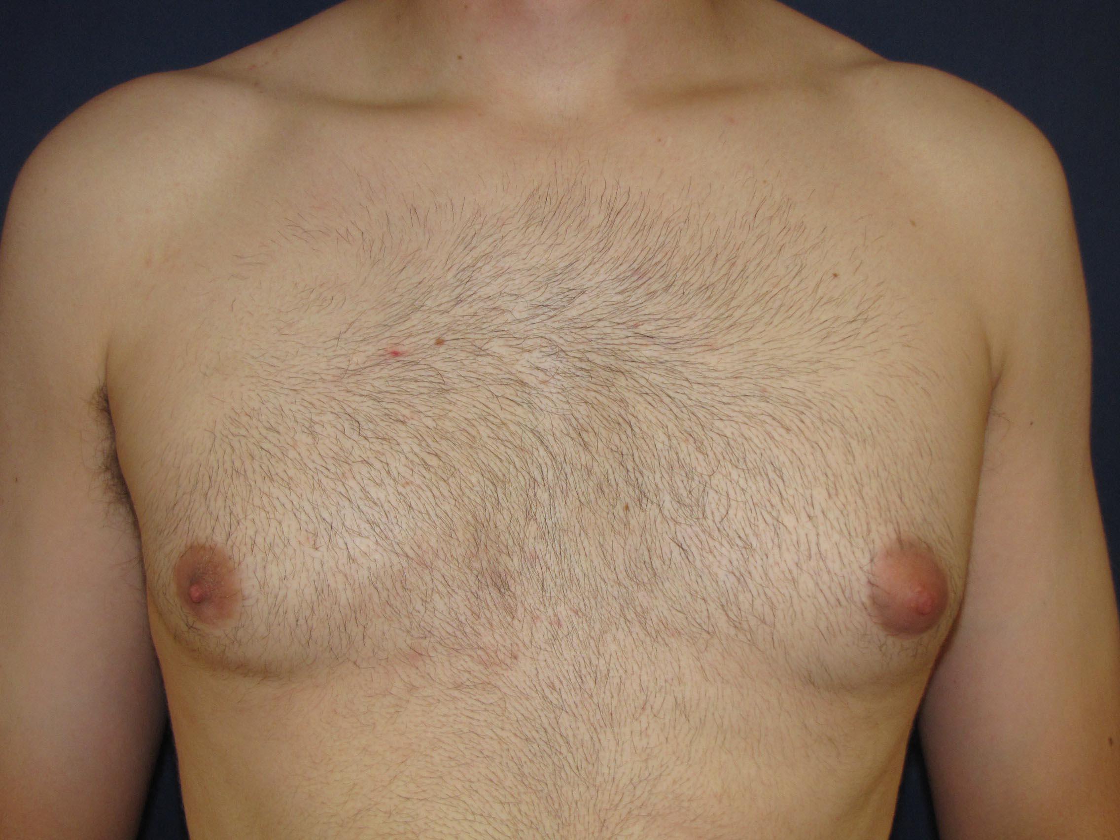 Breasts Faqs
