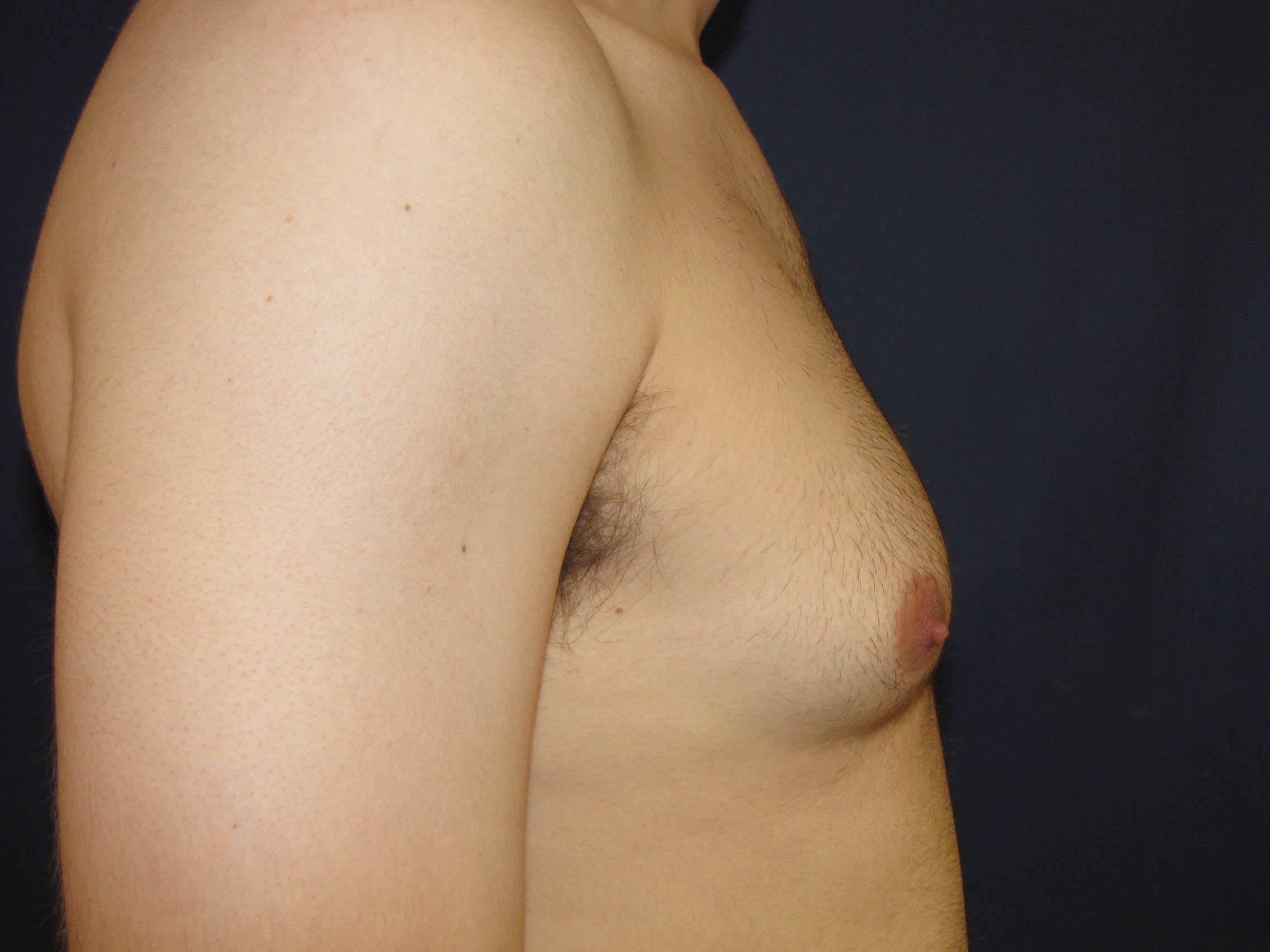 Male breast reduction in san antonio, tx