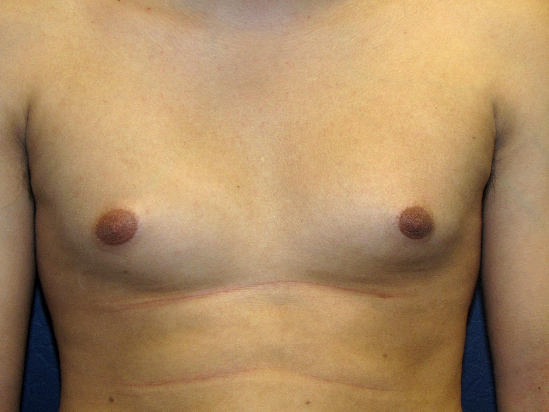 Enlarged male breast surgery