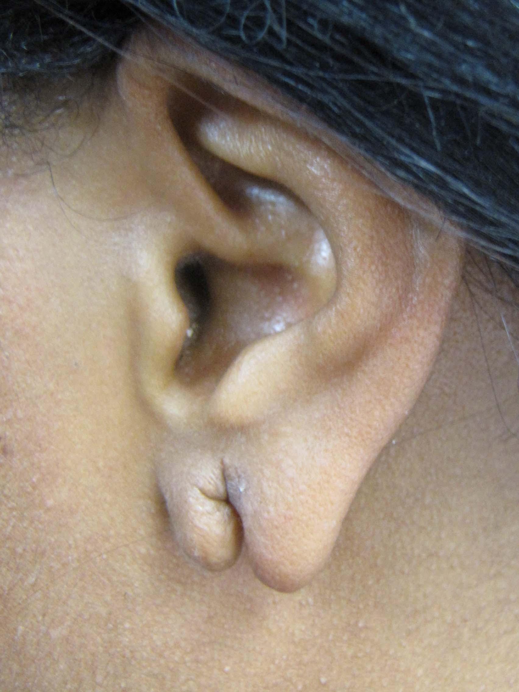 Torn Ear Lobe Repair Scottsdale Phoenix Glendale Az