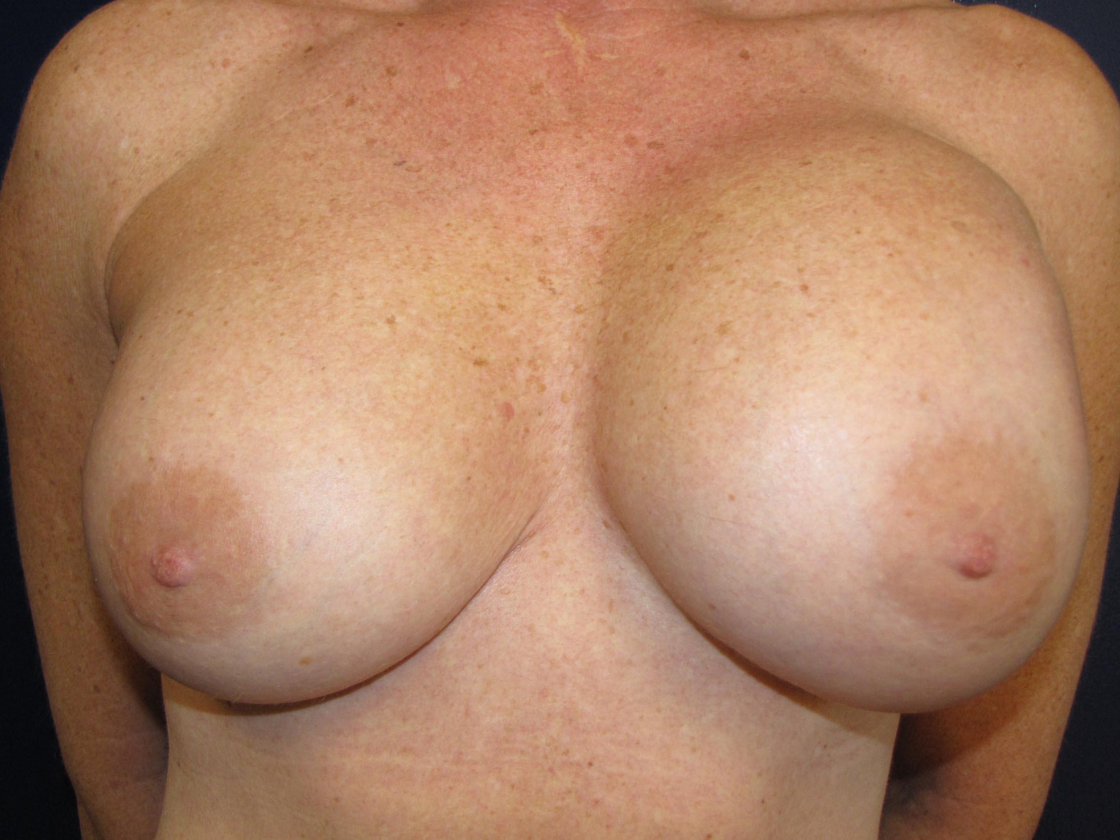 Breast implant ruptured agree
