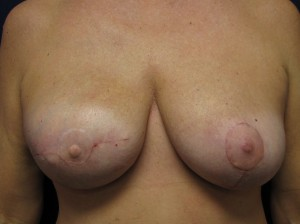 B) Revision of right breast reconstruction and left mastopexy