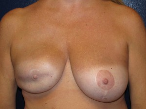 A) Reconstructed right breast before revision - frontal view