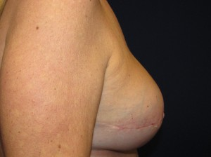 F) After right breast reconstruction revision and left breast lift
