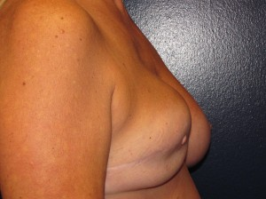 E) Before right breast reconstruction revision and left mastopexy