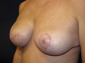 D) After revision of right breast reconstruction and left breast lift