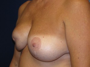 C) Before right breast reconstruction revision and left mastopexy