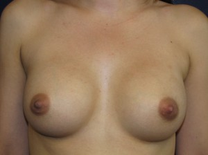 A) 7 years after breast enlargement with saline implants