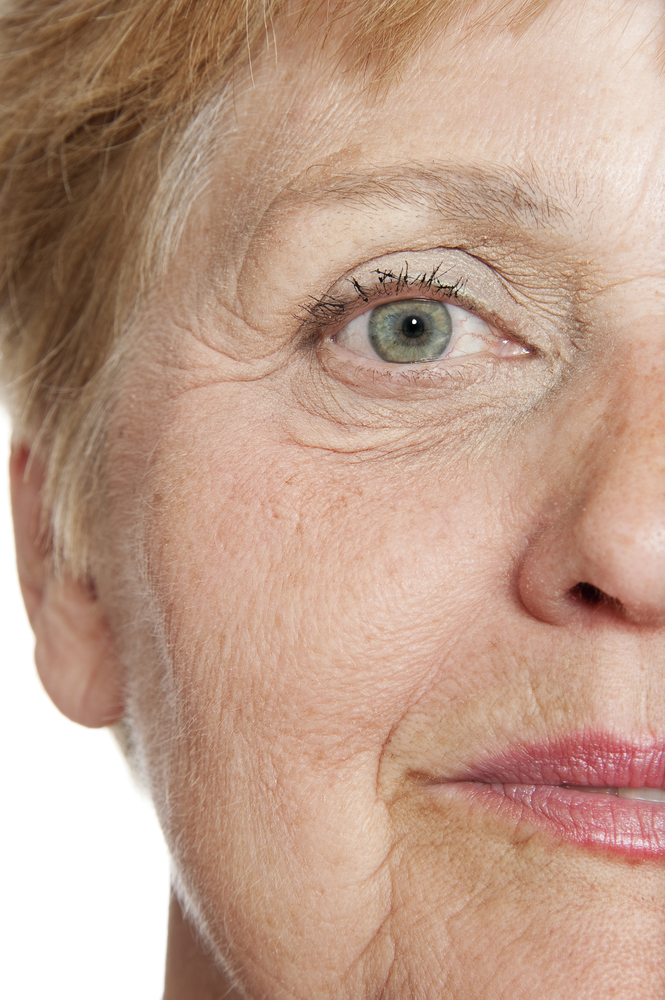 Older woman for facelift