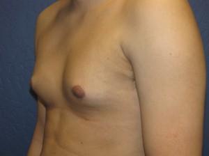 Gynecomastia 200A
