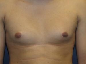 Gynecomastia 200