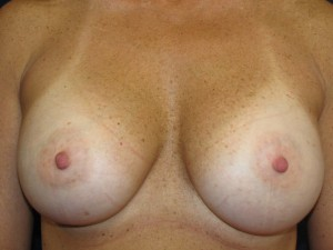 Ten years after breast augmentation - frontal view