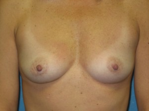 Before breast augmentation with saline implants