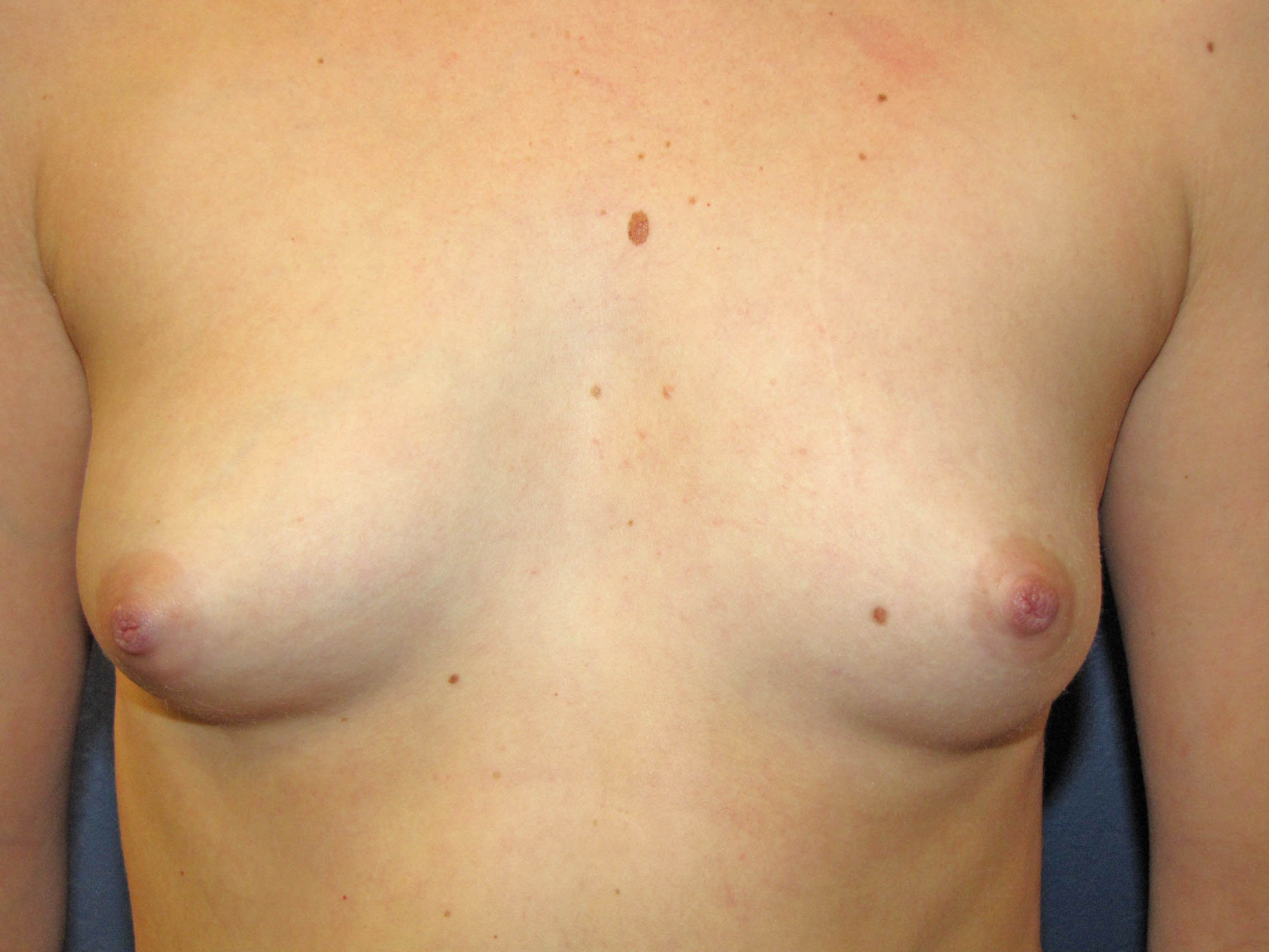 Young girl breast delvopment — pic 8