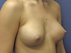 F) after surgery - oblique view