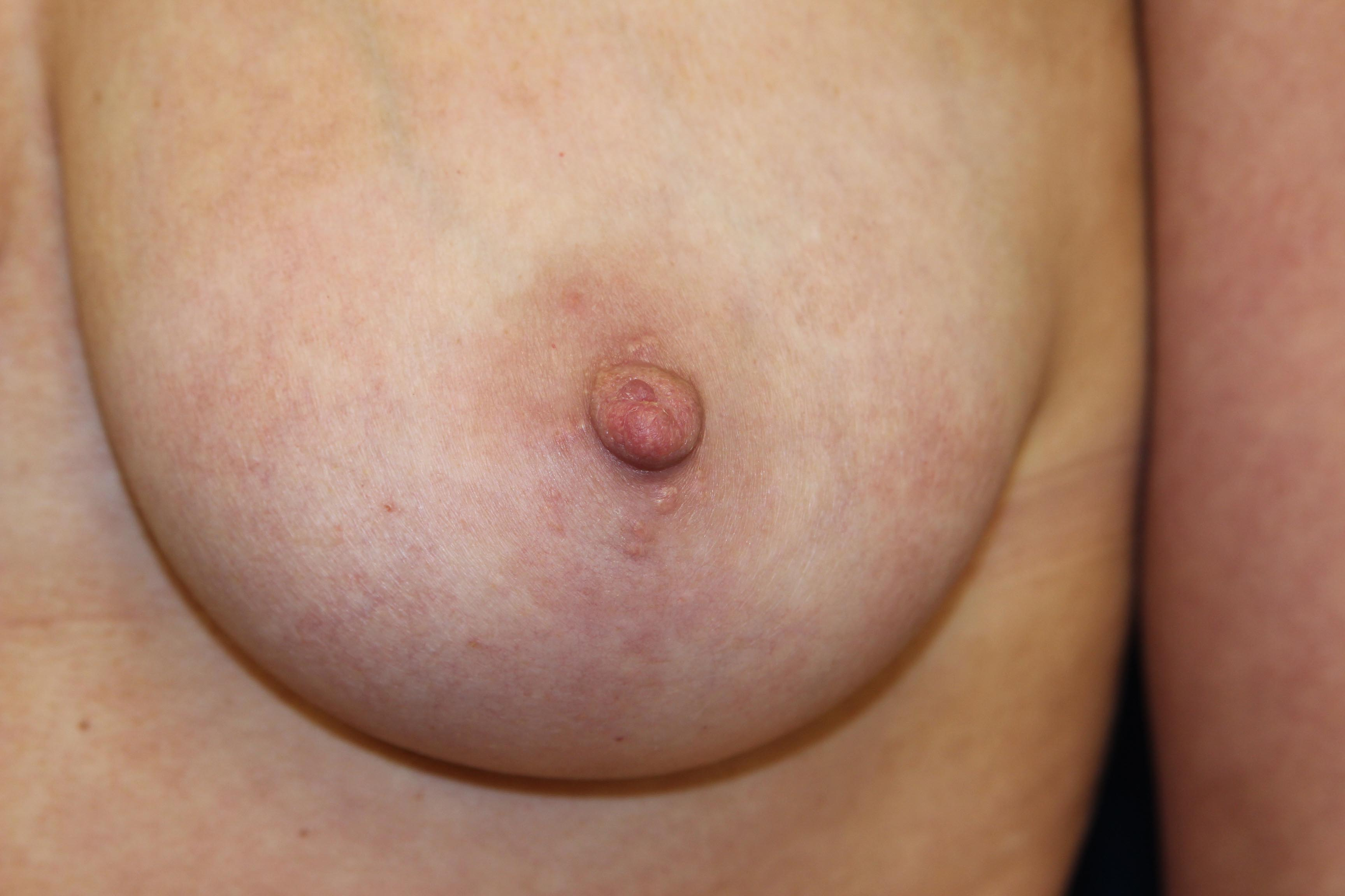 How to correct inverted nipples and what are the causes