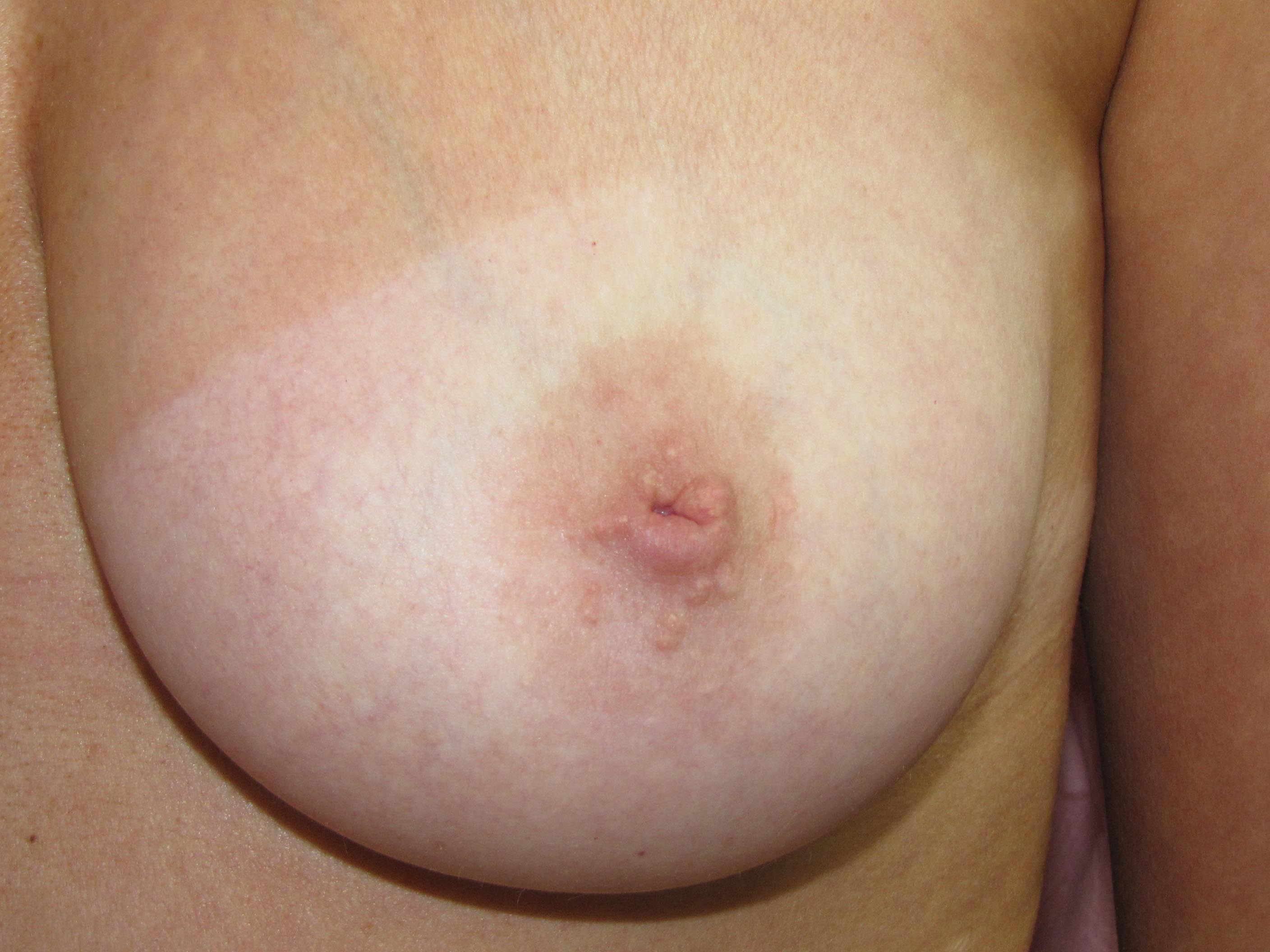 Clit and nipple piercing procedures