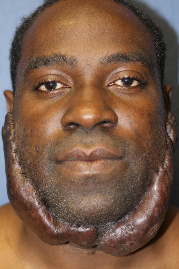 Recurrent facial keloid